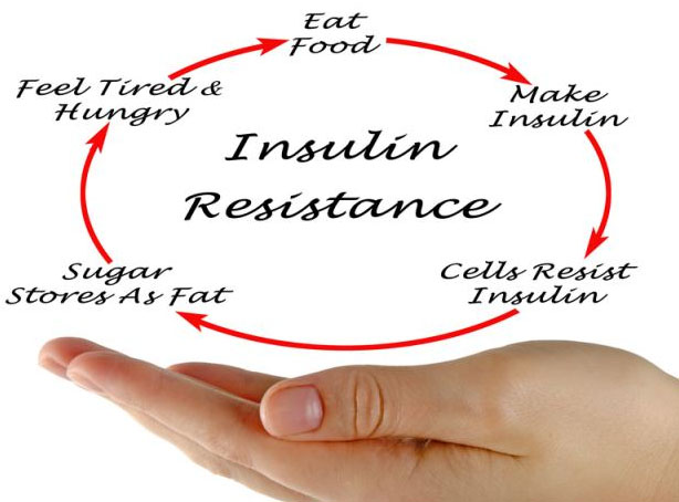 Understanding Insulin Resistance Carbohydrate Metabolism and Type 2 Diabetes